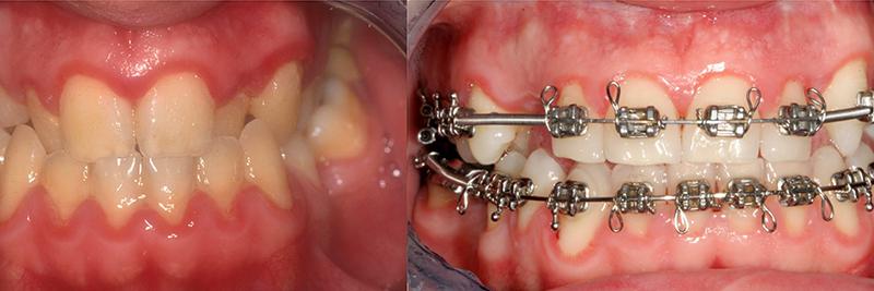 Caso clinico Ortodonzia, Chirurgia, Corone e Faccette 1