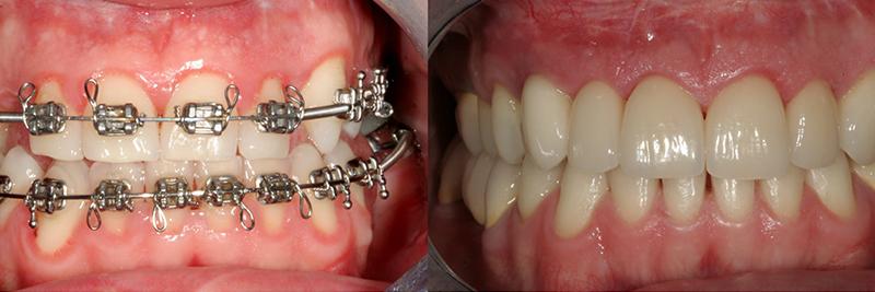 Caso clinico Ortodonzia, Chirurgia, Corone e Faccette 2