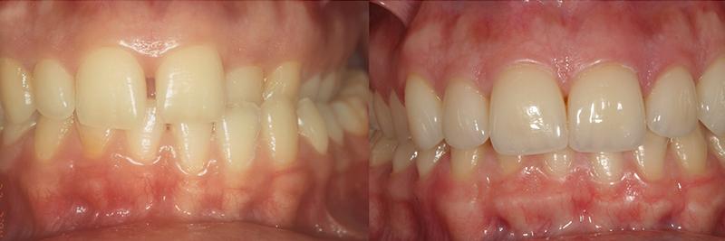 Caso clinico Ortodonzia e Faccette 1