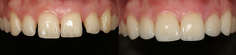 Caso clinico Ortodonzia e Faccette 2