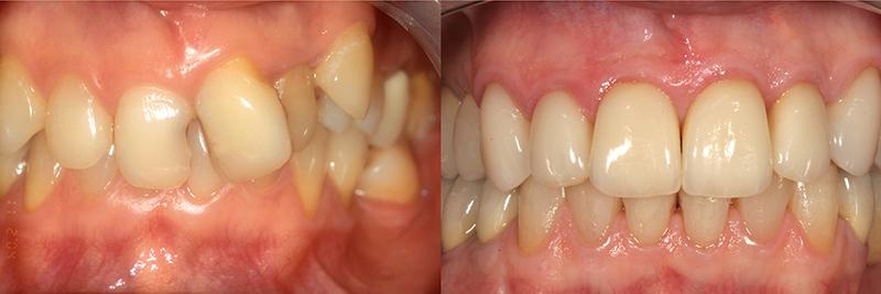 Caso clinico Ortodonzia, Impianti, Corone e Faccette 1