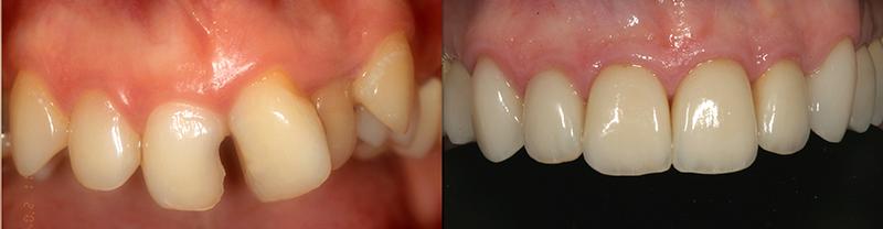 Caso clinico Ortodonzia, Impianti, Corone e Faccette 2