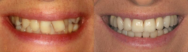 Caso clinico Ortodonzia, Impianti, Corone e Faccette 3
