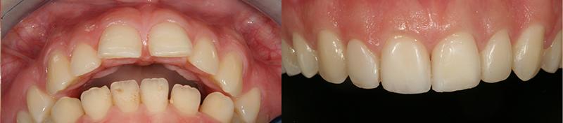 Caso clinico Ortodonzia, Ricostruzioni in composito 2