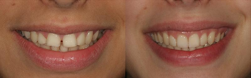 Caso clinico Ortodonzia, Ricostruzioni in composito 3