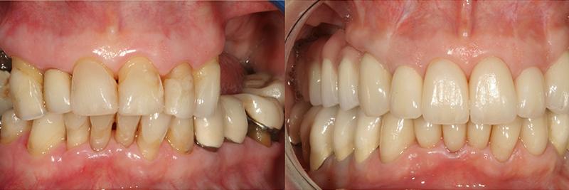 Caso clinico Rigenerazione ossea, Impianti, Corone e Faccette 1